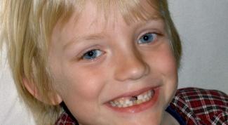 Когда выпадают первые зубы