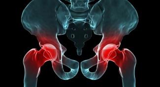О чем сигнализирует боль в тазобедренном суставе при ходьбе