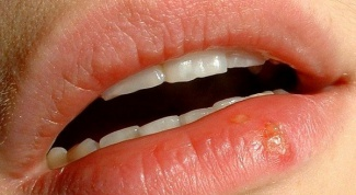 How to treat ulcer on the lip