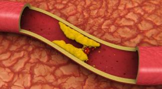 Обязательно ли нужно уменьшать холестерин