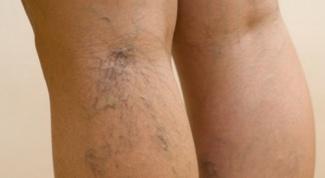 Как убрать выпирающие вены на ногах