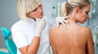 How and where to check moles for cancer