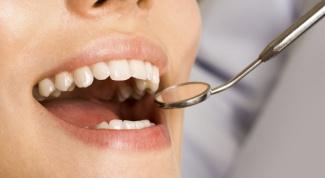 Как выглядит киста над зубом