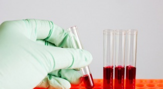 Как проверяют кровь на алкоголь