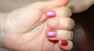 Как выглядит грибок ногтей рук