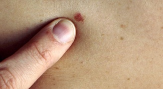 How to check a mole on Oncology