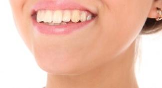 Как выглядит и зачем нужна пластинка для зубов