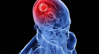 Как выглядит рак мозга