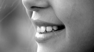 Как выглядит кариес на зубах