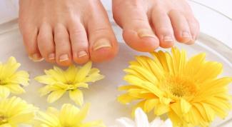 Как предотвратить появление грибка на ногах