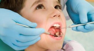 Как и когда у детей меняются зубы