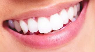 Как сделать красивыми зубы и сохранить привлекательную улыбку