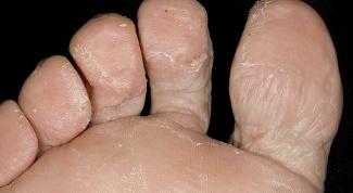 Грибок стопы, как им можно заразиться и как лечить