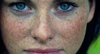 Will the creams of pigment spots