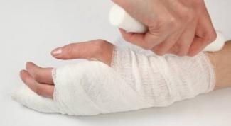 Как долго  срастаются различные переломы