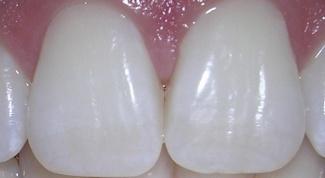 Какой зуб называют глазным