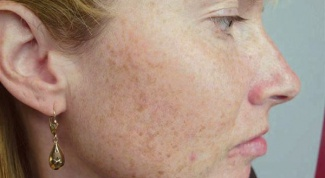 The removal of pigmented spots.