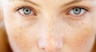 Почему у беременных появляются пигментные пятна на коже