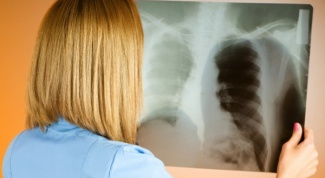 Как передается закрытый туберкулез