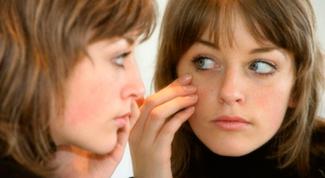 How to treat red rash around eyes
