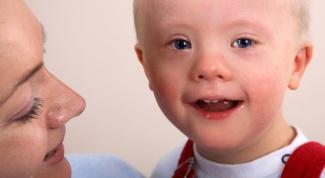 Причины рождения детей с синдромом Дауна