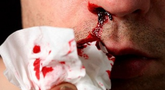 Dream interpretation: blood from the nose