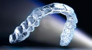 Прозрачные каппы для выравнивания зубов