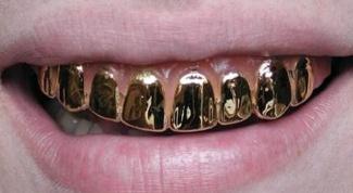 Где и когда появилась мода на золотые зубы