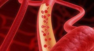 Какими сосудами представлена система верхней полой вены