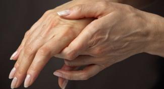 Почему ломит кисти рук и пальцы