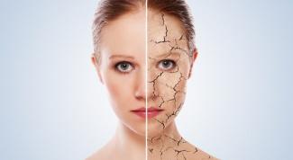 Псориаз: заразен или нет