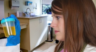 Why increased bilirubin in the urine
