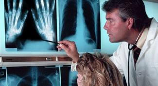 Туберкулез костей: этапы развития и симптомы