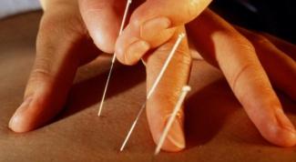 Иглоукалывание при остеохондрозе: за и против