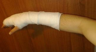 Что значит перелом лучевой кости со смещением