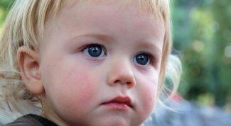 Почему у ребенка красные щеки