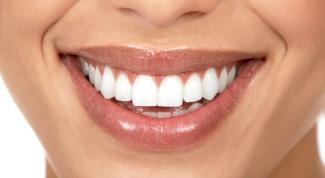 Как выровнять зубы с помощью виниров