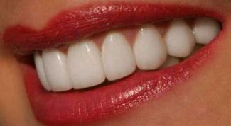 Как отбелить зубы самостоятельно и сохранить эмаль