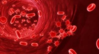 Рак крови: симптомы и причины