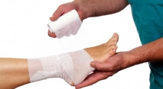 Растяжение и разрыв связок голеностопа: первая помощь