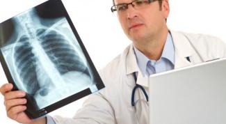 Пневмония без температуры: симптомы и лечение