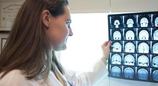 Сотрясение головного мозга:  диагностика и лечение