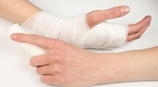 Что делать при переломе руки