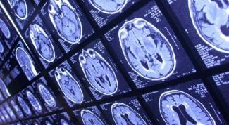 Нейрофизиологические причины ухудшения мышления при депрессии, СДВ и ПМС
