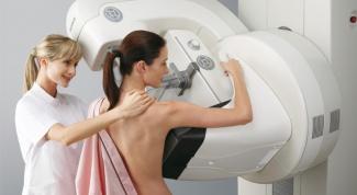 Когда идти на обследование к маммологу