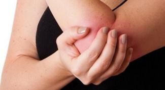 Мазь от ушибов и другие средства от гематомы