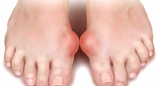 How to relieve the pain of gout