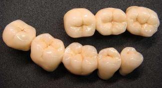 Какой метод протезирования зубов выбрать