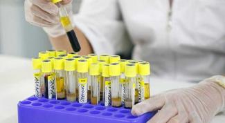 Почему бывает повышена липаза в биохимическом анализе крови