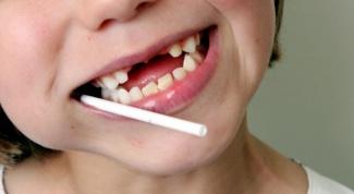 Как сохранить детские зубки